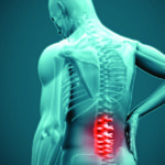 Surgical and Non-Surgical Management of Low Back Pain and Sciatica
