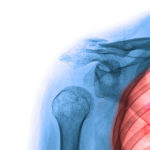 Robotic-assisted lung surgery linked to decrease in post-operative narcotic prescriptions