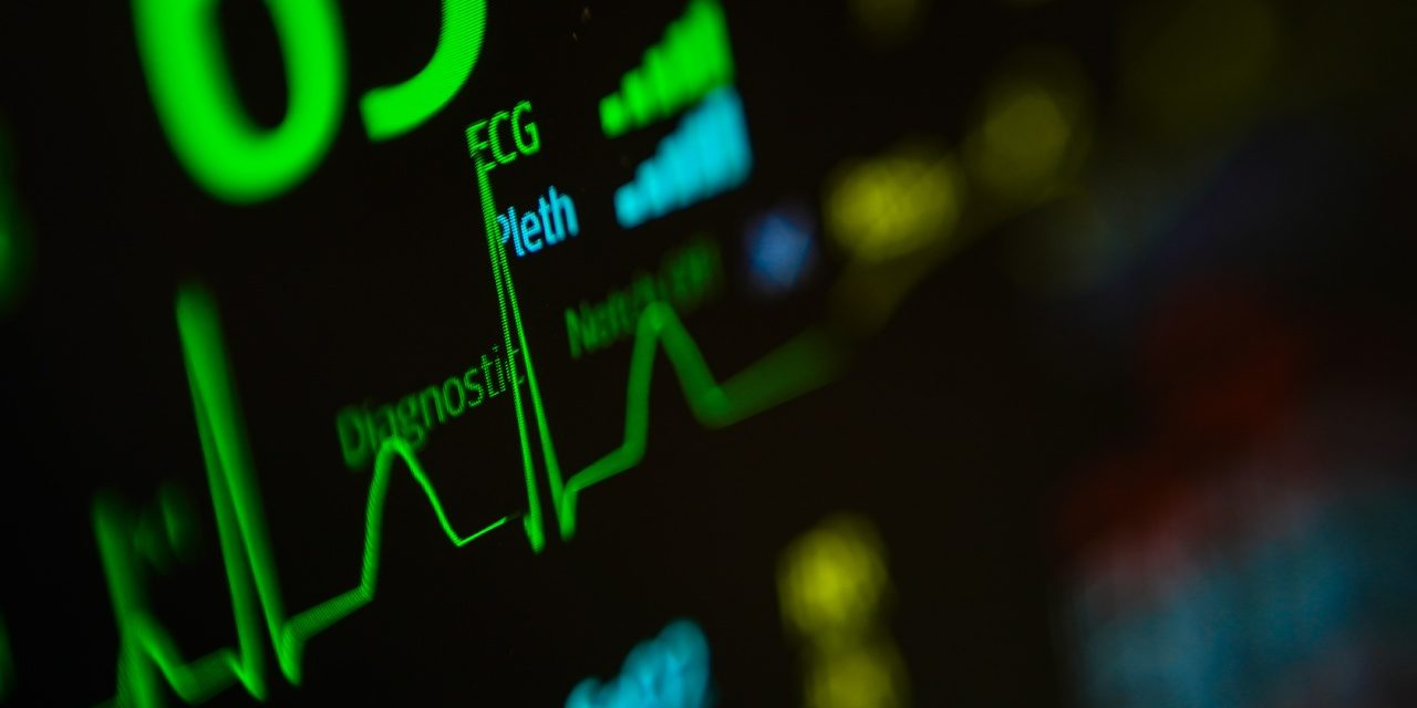 5 Things You Should Know About Arrhythmias