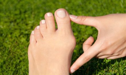A Podiatrist Answers Your Bunion FAQs